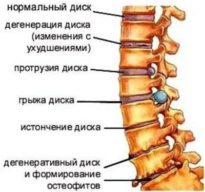 Упражнения при остеохондроз пояснично-крестцового отдела позвоночника