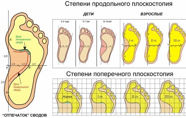 Степени плоскостопия у детей