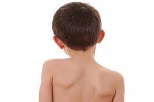 лечебная гимнастика при сколиозе у детей
