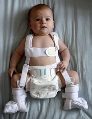 Отводящая шина при дисплазии тазобедренных суставов фото детский реактивный артрит тазобедренного сустава