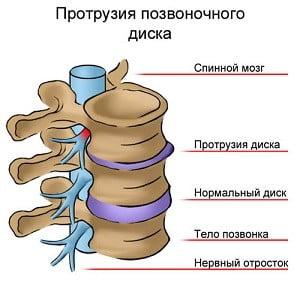 массаж при протрузии шейного отдела позвоночника