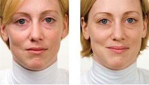 миофасциальный массаж лица до и после