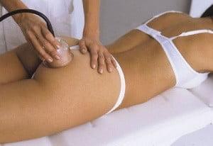 массаж антицеллюлитный бедер и ягодиц