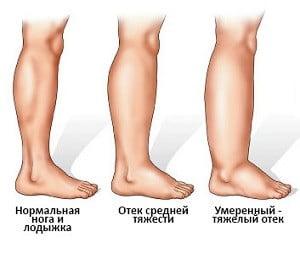 отеки ног причины
