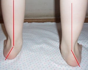 плоско-вальгусные стопы у детей массаж видео