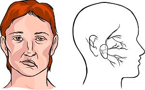 инсульт симптомы первые признаки