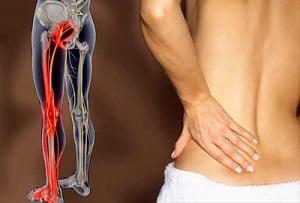 массаж при защемлении нерва