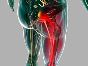 защемление седалищного нерва лечение в домашних условиях