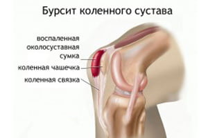 Бурсит коленного сустава: виды, симптоматика и причины развития