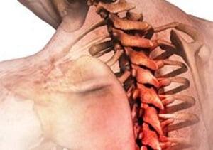 грудной радикулит симптомы лечение