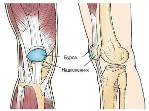 Быстро снять воспаление коленного сустава в домашних условиях может ли ребенок получить инвалидность при диагнозе анкилоз нижнечелюстного сустава
