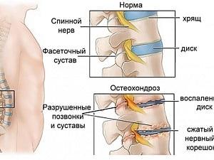 радикулит симптомы и лечение