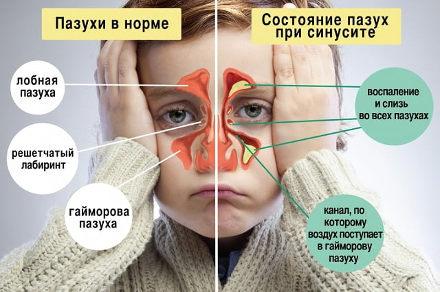 Как заложенность носа в домашних условиях 41