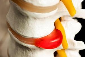 нуклеопластика удаление грыжи межпозвонкового диска
