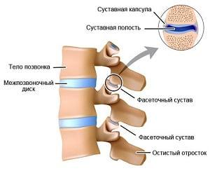 Деформирующий спондилоартроз: причины и симптомы