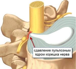 радикулит шейного отдела позвоночника