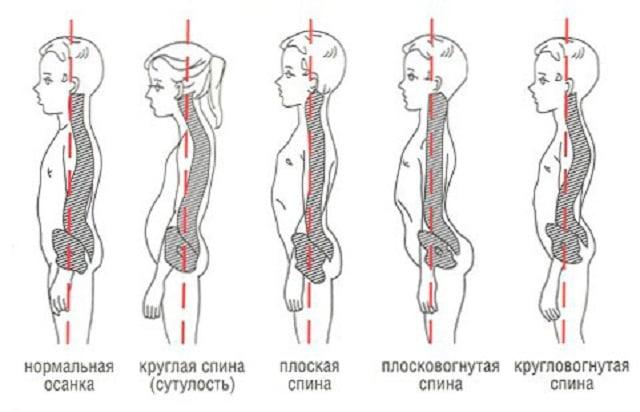 сколиоз лечение массаж