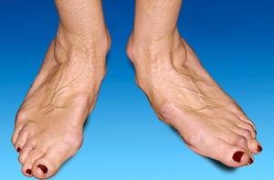 Артрит голеностопного сустава: симптомы и лечение, фото сустава
