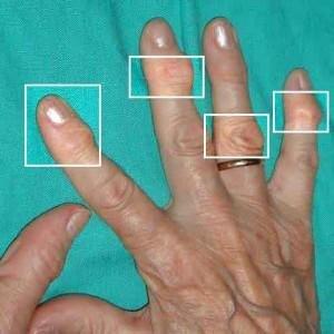 артрит пальцев рук симптомы и лечение народные средства