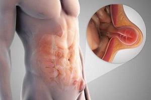 безоперационное лечение паховой грыжи у мужчин