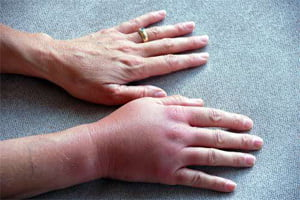 лечение артрита пальцев рук медикаментами