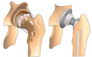 артропластика коленного сустава