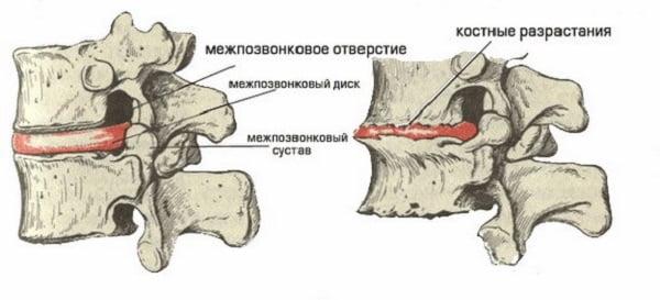 Причины и симптоматика шейного хондроза