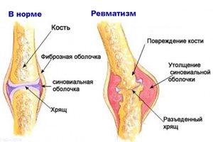 Ревматизм суставов: симптом и лечение, массаж при ревматизме